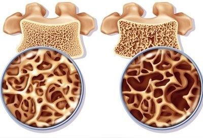 Что такое остеопения как определить и лечить болезнь