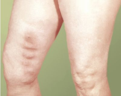 От чего болят мышцы выше колен