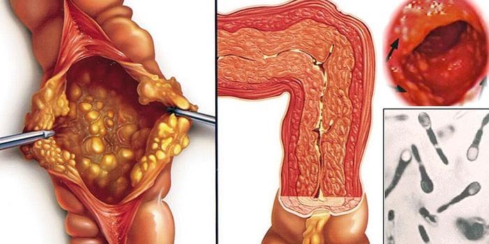 Псевдомембранозный колит диета