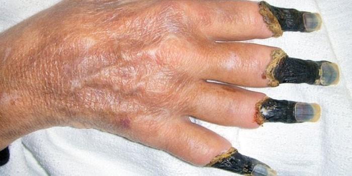 Сахарный диабет картинки на пальцах