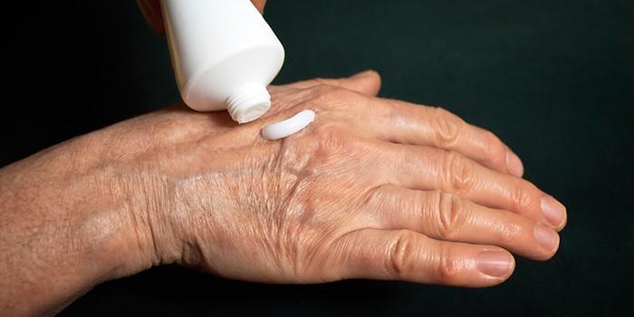 Эффективные мази при артрите рук -