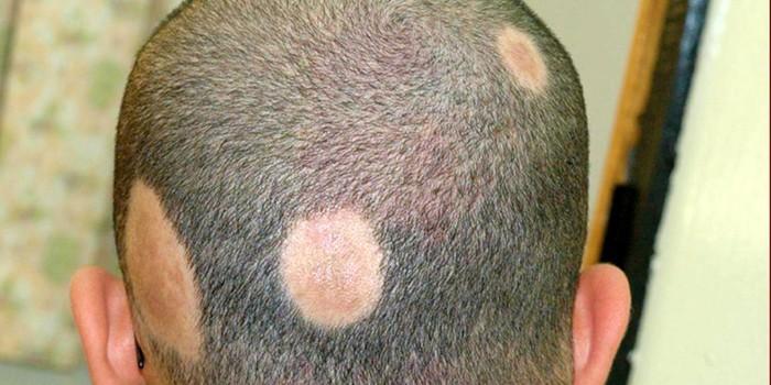 Как лечить очаговую алопецию у мужчин — Волосы