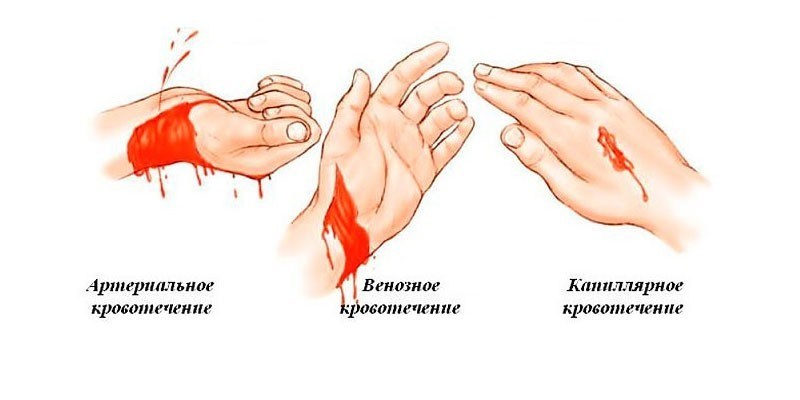 Максимальное время наложения артериального жгута