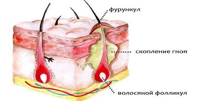 Фурункул лечение антибиотиками