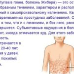 Какую нужно соблюдать диету при розовом лишае