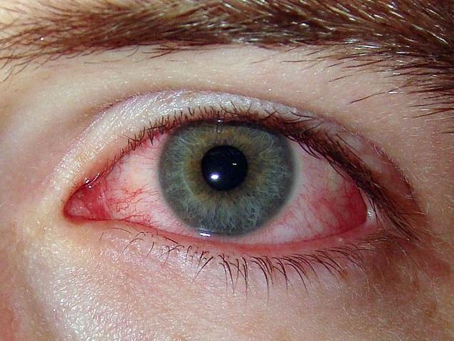 Аналоги визина дешевые для глаз || Аналоги визина дешевые для глаз